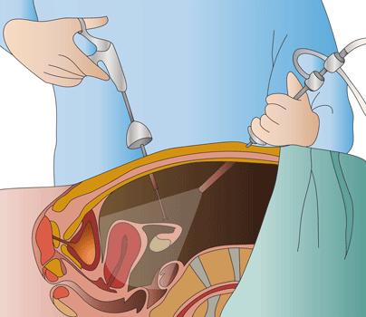 ¿Qué es la cirugía laparoscópica urológica?