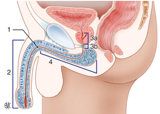 IV Reunion Nacional Grupo de Cirugía Reconstructiva Urológica