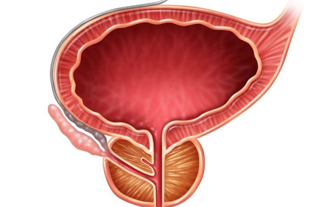 seguimiento de próstata italiano
