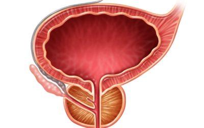 Etiología de la Hiperplasia Benigna de Próstata