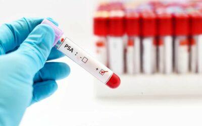 Objetivos del urólogo en el cáncer de Próstata de Bajo Riesgo